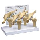 4-Stage Degenerative Bone Diseases of the Hip Model, 1019506, Genital and Pelvis Models