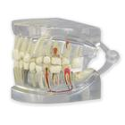 Clear Human Jaw with teeth model,1019540