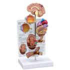 Hypertension Set, 1019572, Microanatomy Models