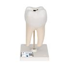 Lower Twin-Root Molar with Cavities Human Tooth Model, 2 part - 3B Smart Anatomy, 1000243 [D10/4], Dental Models