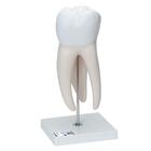Giant Molar with Dental Cavities, 15 times life size, 6 part,D15