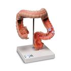 Intestinal Diseases Model - 3B Smart Anatomy, 1008496 [K55], Digestive System Models