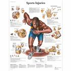 Sports Injuries Chart, 1001494 [VR1188L], Muscle