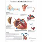 Common Cardiac Disorders Chart, 1001526 [VR1343L], Cardiovascular System