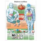 Diabetes Mellitus Chart, 4006694 [VR1441UU], Diabetic Teaching Tools