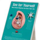 Why Breast Biopsies Can Save Your Life Easel Display,W43136